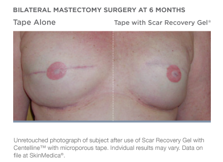 scar-recovery-gel-with-centelline-beforeafter-01.png