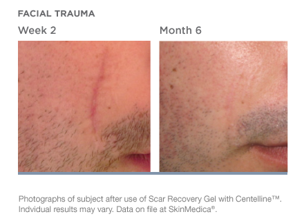 scar-recovery-gel-with-centelline-beforeafter-02.png