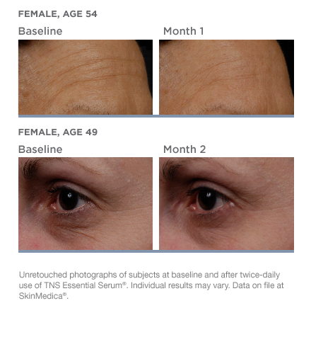tns-essential-serum-beforeafter-01.png