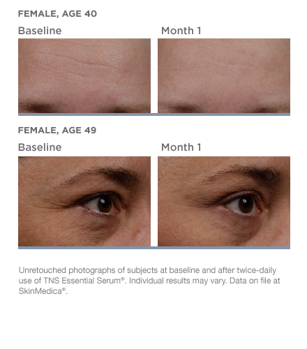 tns-essential-serum-beforeafter-02.png
